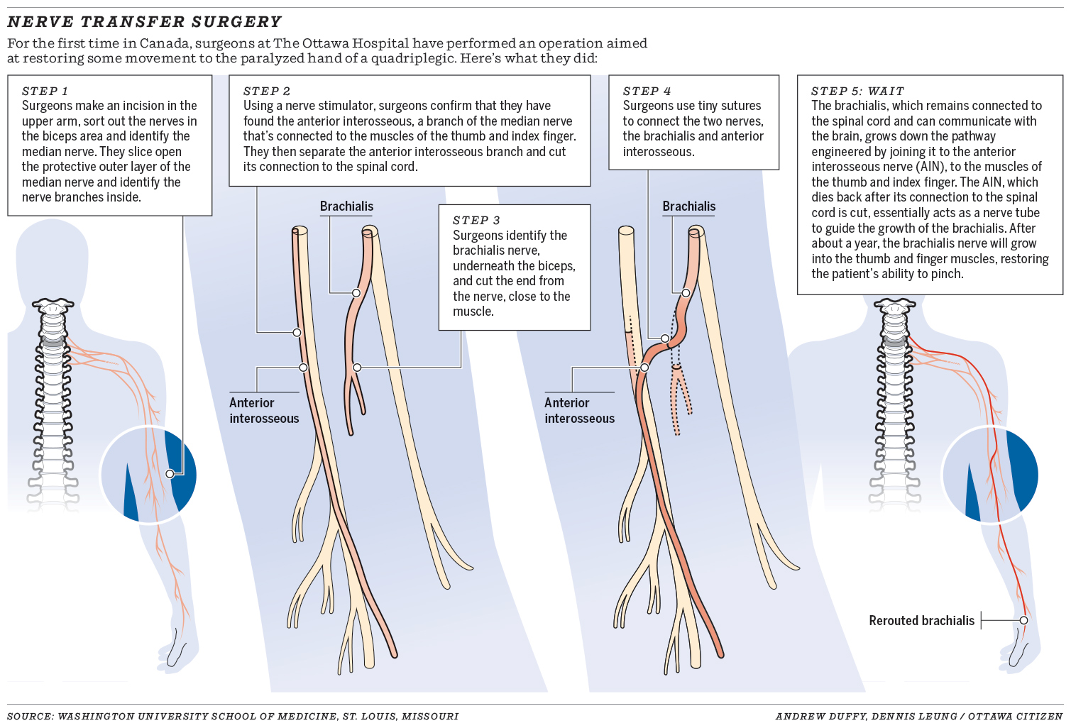 Qa Nerve Transfer Surgery Answers Spinal Cord Injury Zone Schematic Of The Electronic Muscle Stimulation Timer 0314