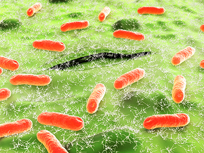 Urinary bacteria in spinal cord injury cases may tip balance toward UTIs
