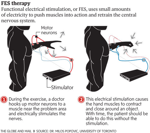 Electronic Stimulation Shows Promise For Quadriplegics