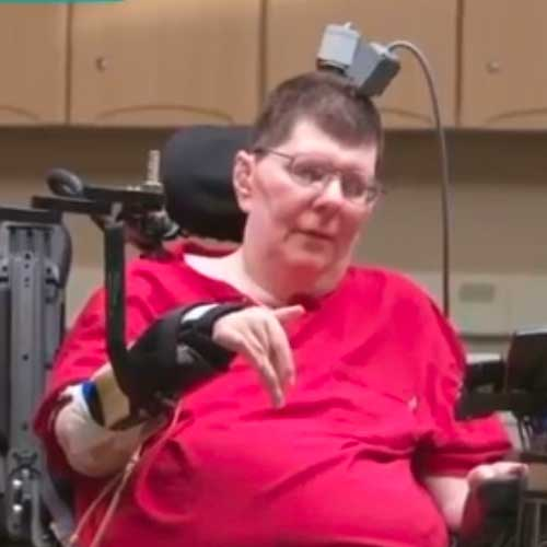 Clinical trial starting in Cleveland to help patients with paralysis regain movement