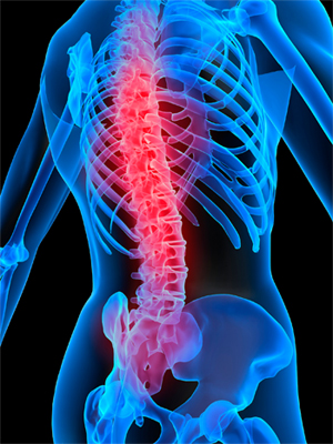 Male Fertility After a Spinal Cord Injury