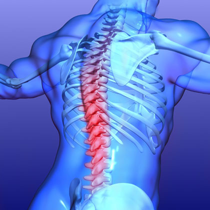 Acute, severe spinal cord injury: Monitoring from the injury to improve outcome