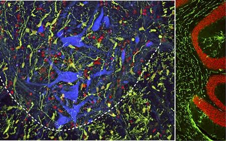New Injection Technique May Boost Spinal Cord Injury Repair Efforts