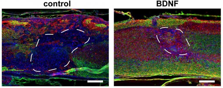 Injectable Porous Scaffolds Promote Better, Quicker Healing After Spinal Cord Injuries