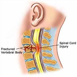 What is a spinal cord injury answers spinal cord injury zone sciox Images